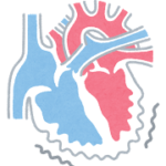ガッテン!心房細動が巨大血栓を作る!巨大血栓を作らない!脳梗塞・寝たきり予防SP