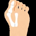 名医のTHE太鼓判:紫吹淳 ハイヒールを止めてスニーカーで外反母趾が悪化?外反母趾予防方法