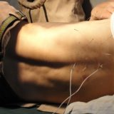 東洋医学ホントのチカラ:鍼灸のホントのチカラを腰痛芸人土田晃之が解明!頻尿もツボで改善?